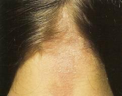 allergic scalp reaction