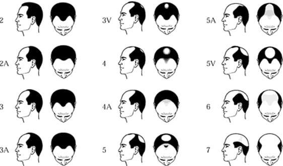 male pattern baldness chart