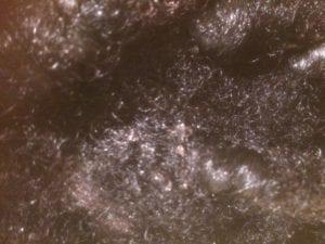 irritant scalp reaction