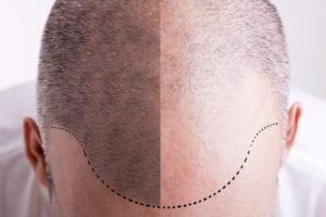 hair surgery before