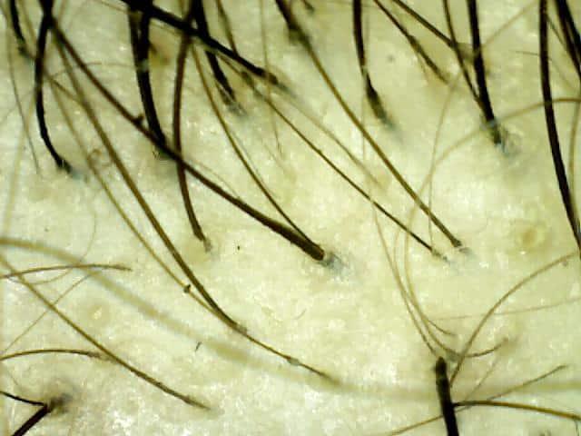 anorexia hair loss