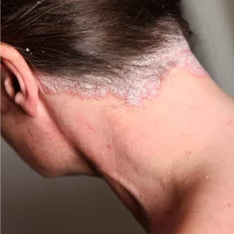 scalp psoriasis, itchy scalp, dry scalp, tel. free advice line now, Skeleton