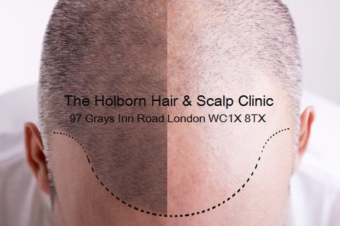 The Holborn Clinic (CQC Reg)