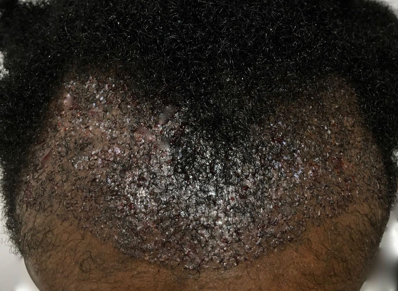 Afro Hair loss