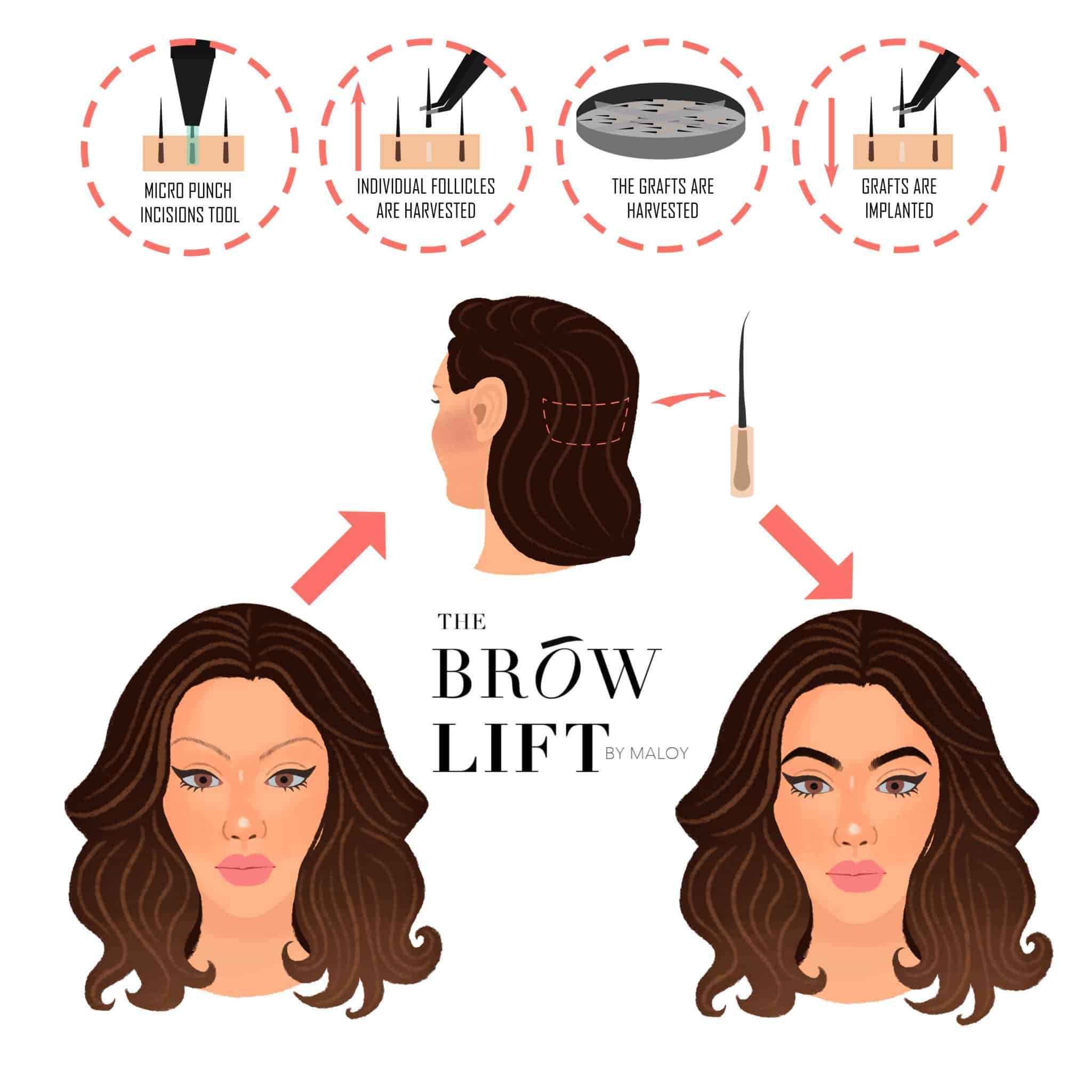 brow lift by Maloy, Brow lift by Maloy, Holborn Hair & Scalp Clinic