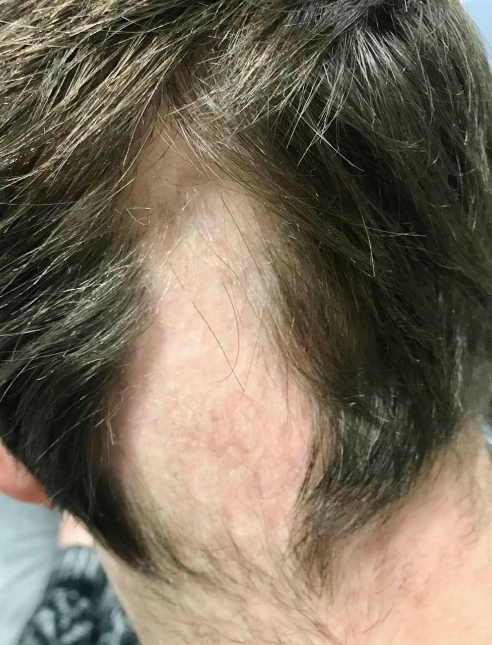 Alopecia Areata, Alopecia Areata, Holborn Hair & Scalp Clinic