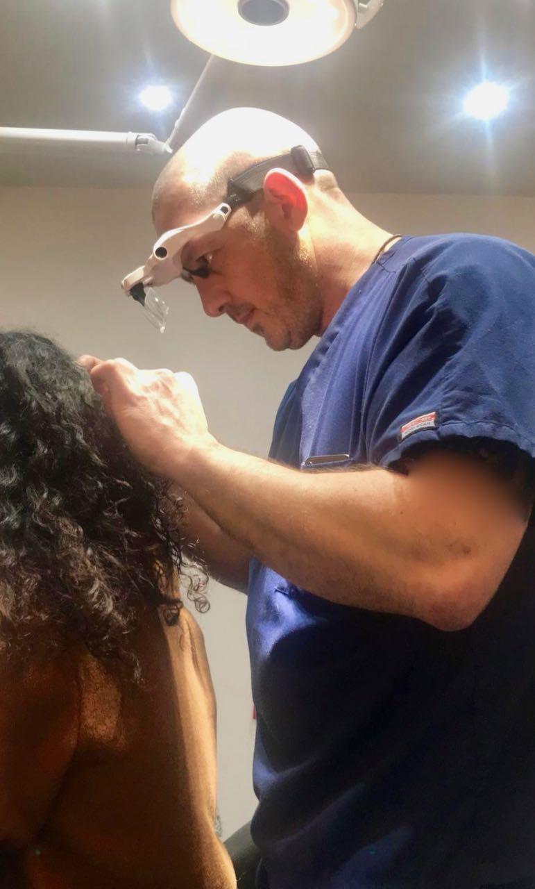 Alopecia Areata, bald spots, alopecia totals, alopecia universals