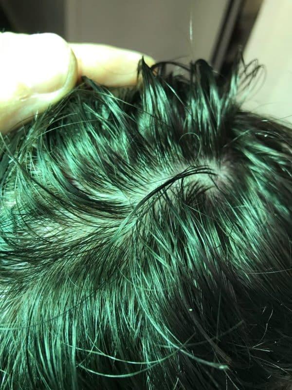 itchy scalp dry scalp flaky scalp crusty scalp skin cancer