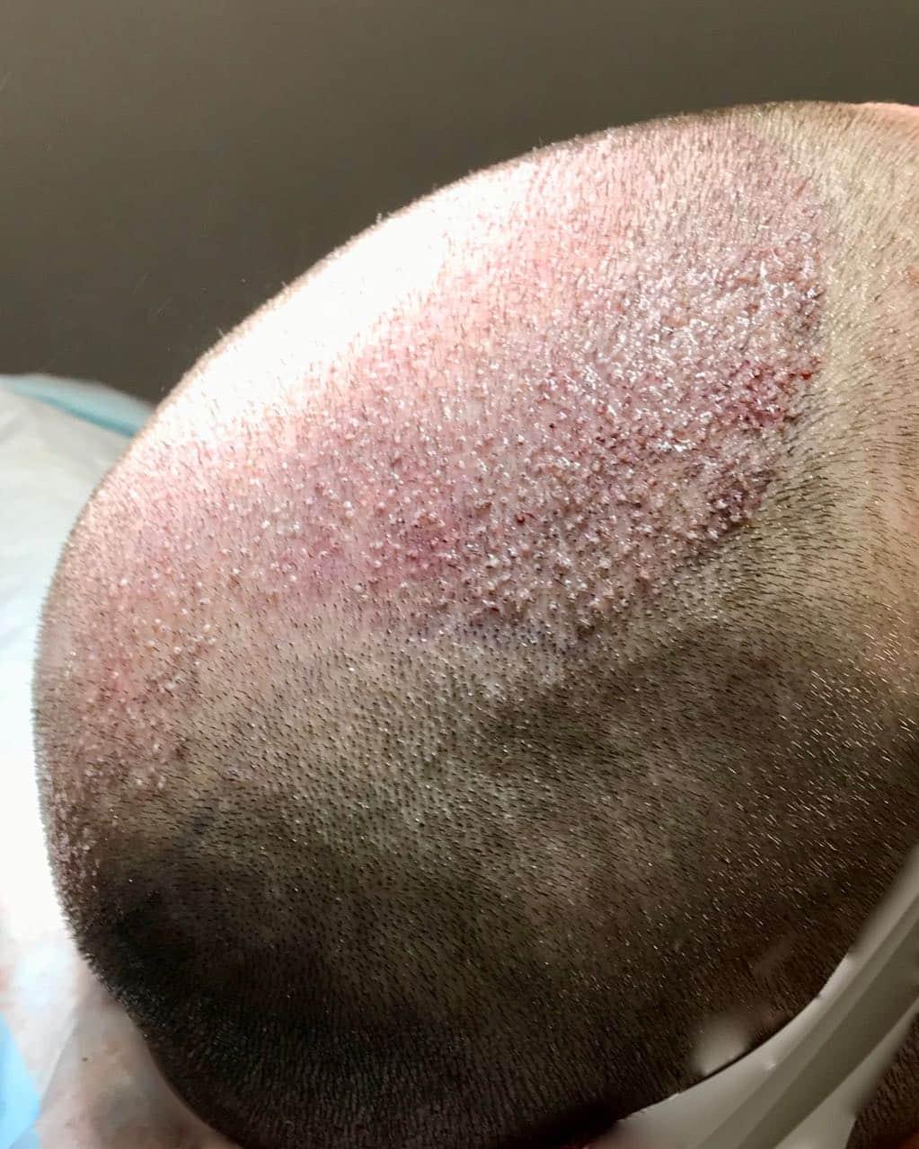 FUE FUT, FUE FUT Transplant, Holborn Hair & Scalp Clinic