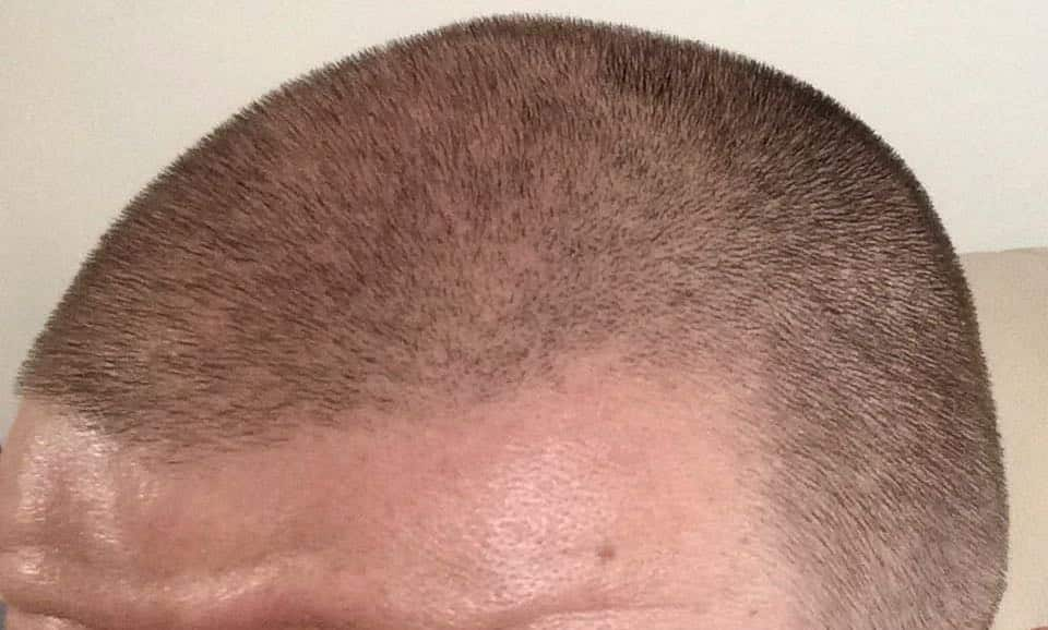 Male pattern baldness, Male Pattern Baldness, Holborn Hair & Scalp Clinic