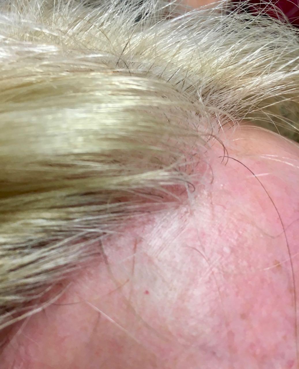 scarring alopecia, Scarring Alopecia, Holborn Hair & Scalp Clinic
