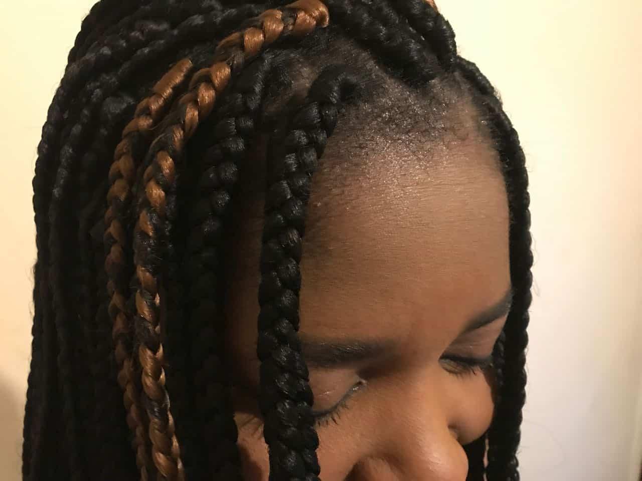 hair loss, Hair Loss, Holborn Hair & Scalp Clinic