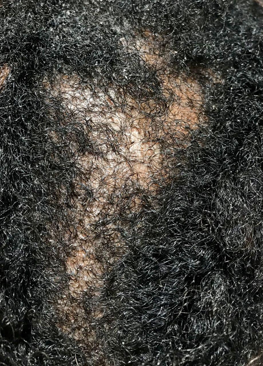 dandruff, Dandruff, Holborn Hair & Scalp Clinic
