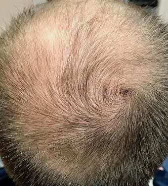 hair loss male pattern baldness