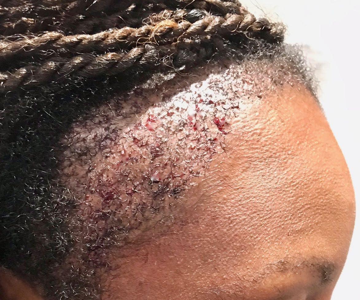 Afro Hair surgery