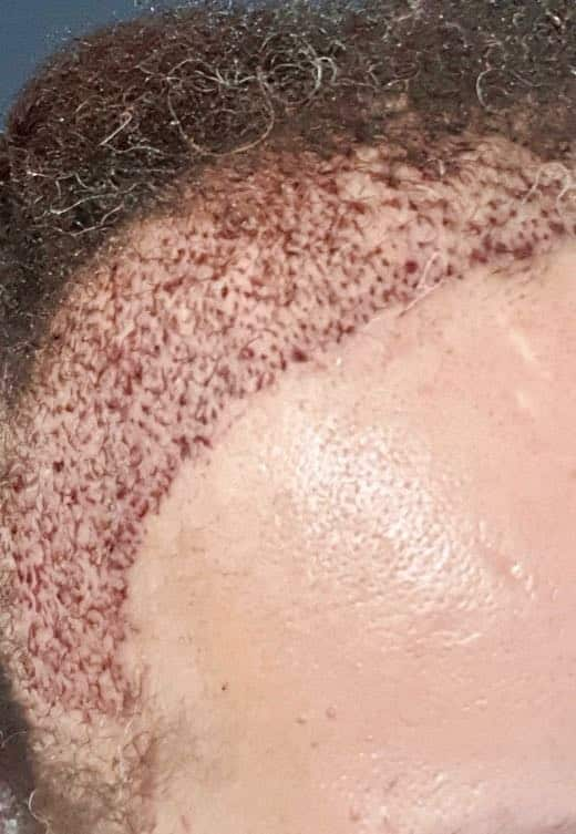 FAQ Afro Hair transplant