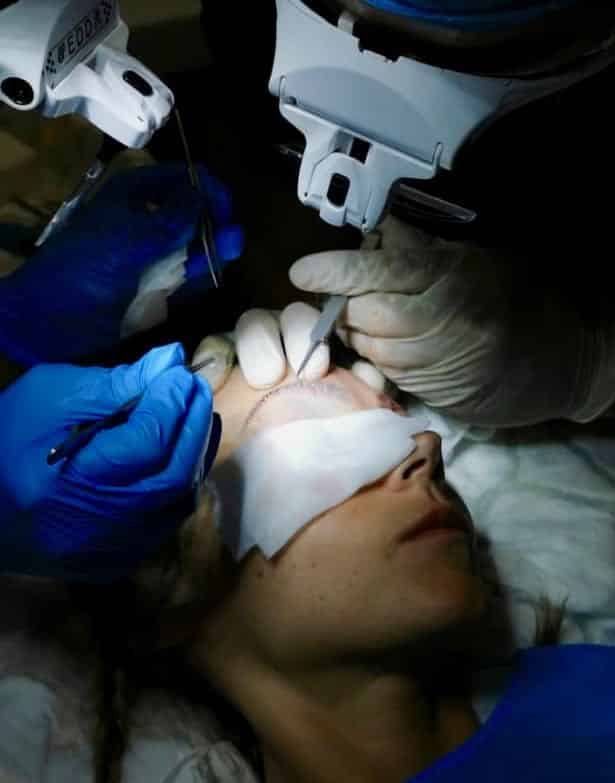 eyebrow transplant, Eyebrow Transplant, Holborn Hair & Scalp Clinic