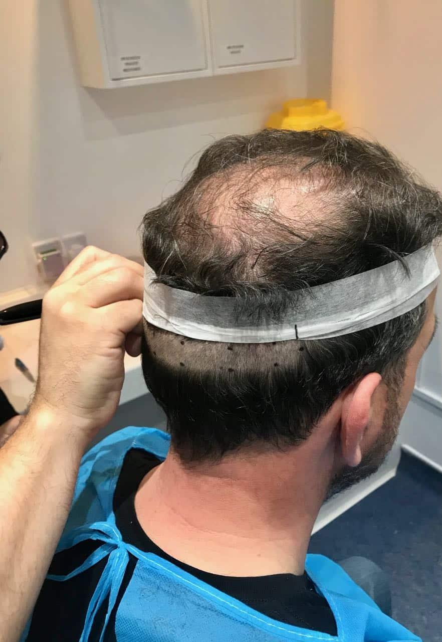 fut Hair Transplant, FUT Hair Transplant, Holborn Hair & Scalp Clinic