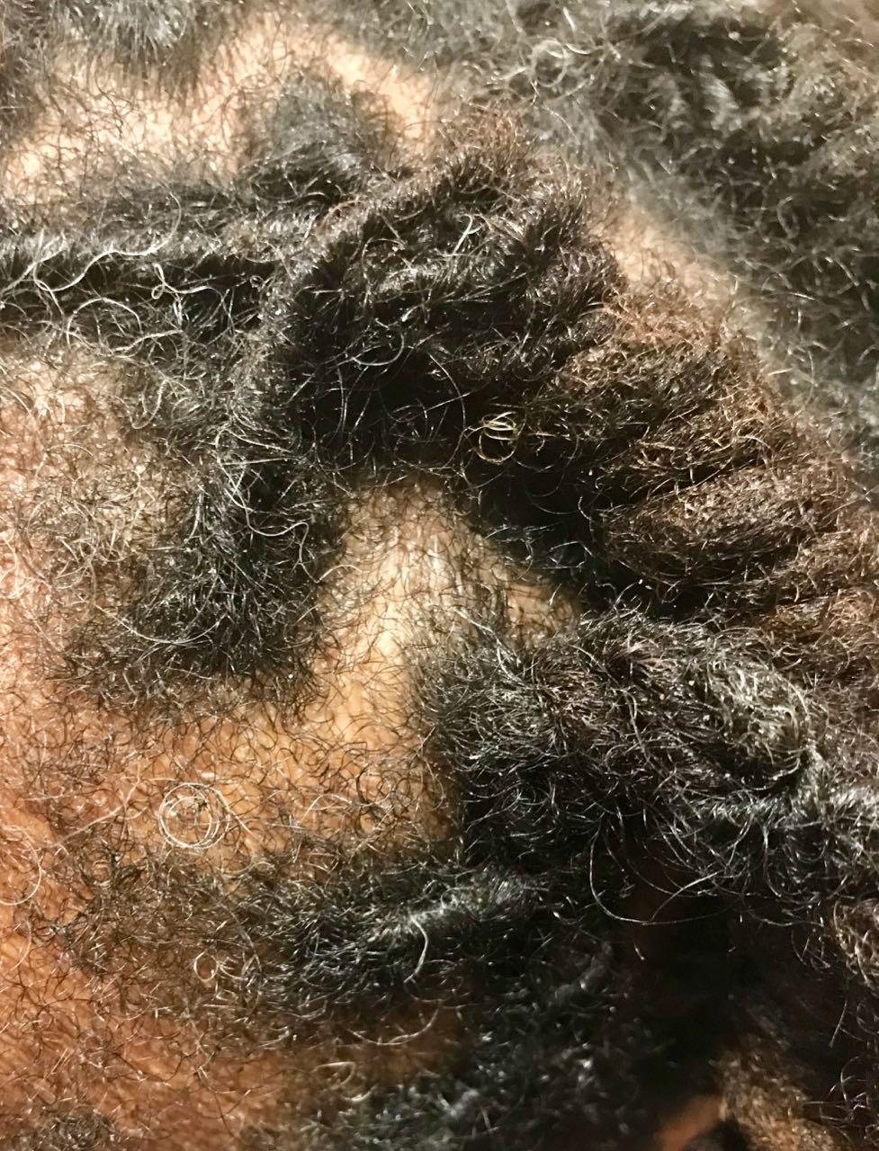 afro scalp cleansing, Afro Scalp Cleansing, Holborn Hair & Scalp Clinic