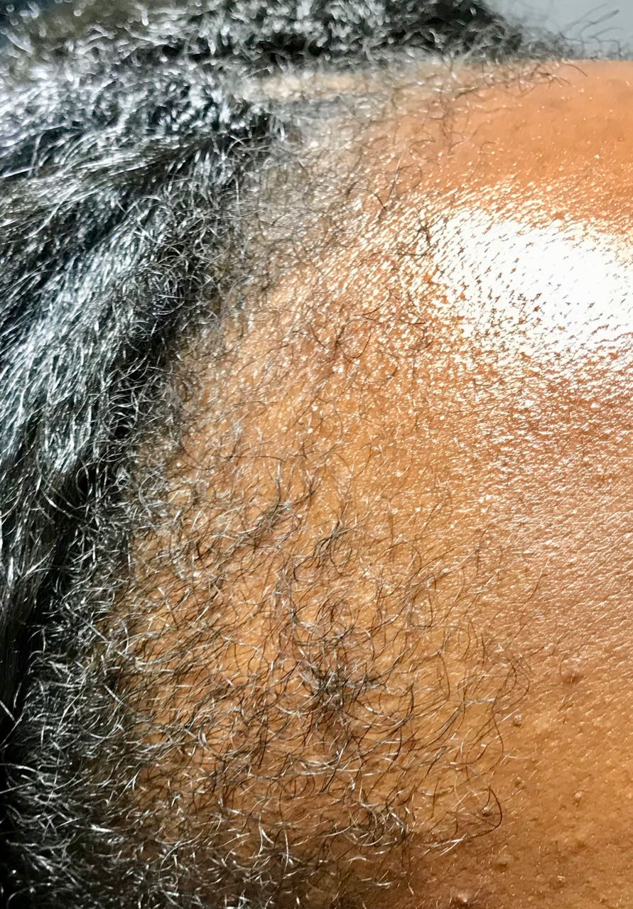 afro scalp, Afro Scalp, Holborn Hair & Scalp Clinic