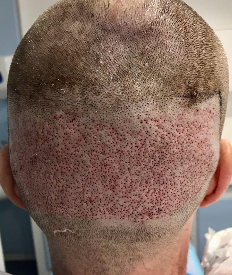 fue Hair Transplant, FUE Hair Transplant, Holborn Hair & Scalp Clinic