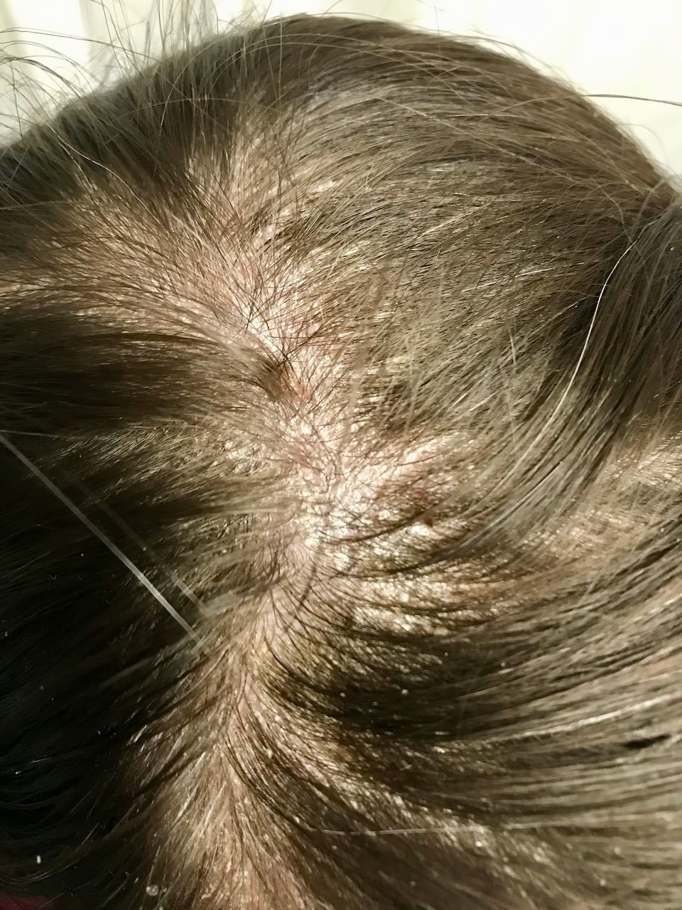 treatment for scalp psoriasis