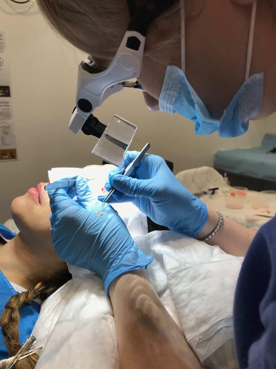 women's hair transplant, Women's Hair Transplant, Holborn Hair & Scalp Clinic