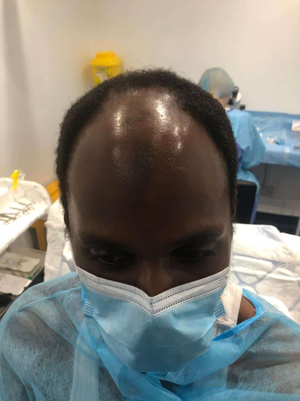 Afro Hair Transplant, Afro Hair Transplant, Holborn Hair & Scalp Clinic