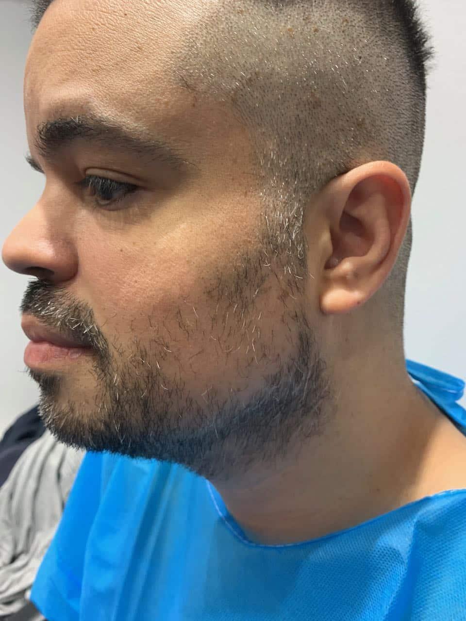 beard transplant, Beard Transplant, Holborn Hair & Scalp Clinic